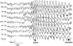 Ηλεκτροεγκεφαλογράφημα επιληπτικής κρίσης