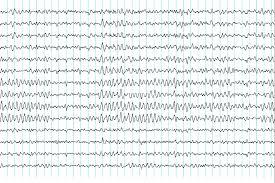 φυσιολογικό Ηλεκτρογκεφαλογράφημα