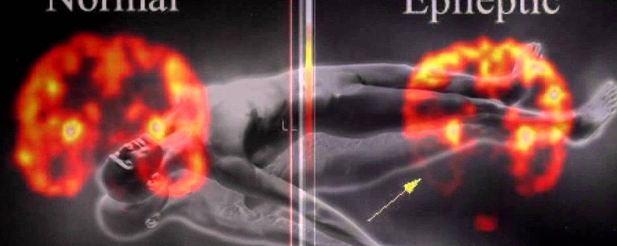 epilipsia
