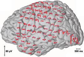 νευροφυσιολογικές εξετάσεις